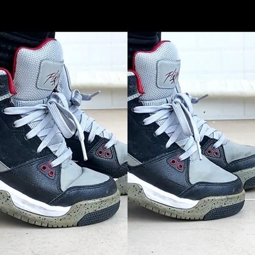 1+1(M+L) 신발 보톡스패드 주름 방지 관리 케어용품