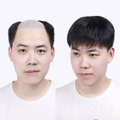 블링앤수 자연스러운 남자가발 HCS008